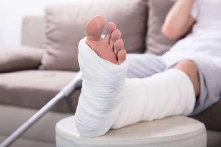 Photo pour Close-up Photo Of A Man's Plastered Leg - image libre de droit