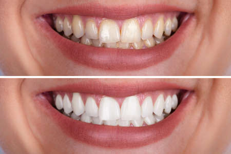 Photo pour Close-up Of A Smiling Woman's Teeth Before And After Whitening - image libre de droit