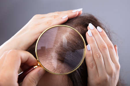 Foto per Dermatologist's Hand Examining Woman's Hair With Magnifying Glass - Immagine Royalty Free