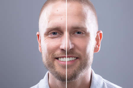 Photo pour Portrait Of A Smiling Man's Face Before And After Cosmetic Procedure On Grey Background - image libre de droit