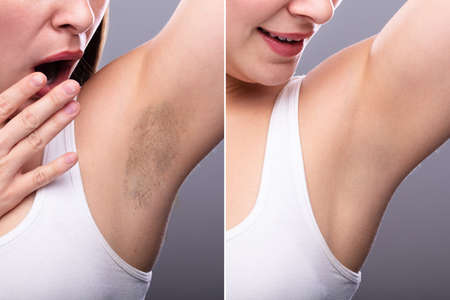 Photo pour Before And After Concept Of Woman's Underarm Hair Removal On Grey Background - image libre de droit