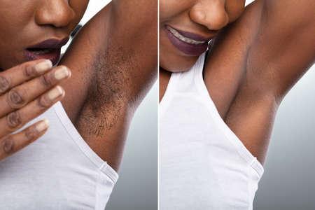 Foto de Before And After Concept Of Woman's Underarm Hair Removal On Grey Background - Imagen libre de derechos