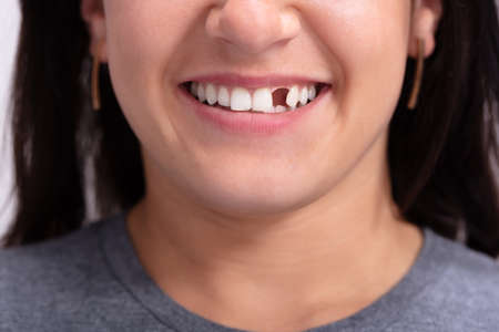 Photo pour Close Up Photo Of Young Woman With Missing Tooth - image libre de droit