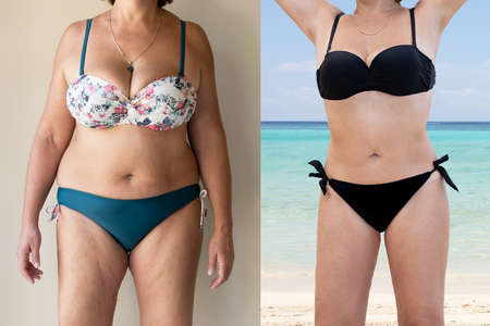 Photo pour Mature Woman Before And After From Fat To Slim Concept Standing - image libre de droit