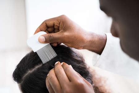 Photo pour Close-up Of Person Hand Using Lice Comb On Patient's Hair - image libre de droit