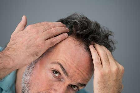 Photo pour Man Checking His Hair Loss And Dandruff - image libre de droit