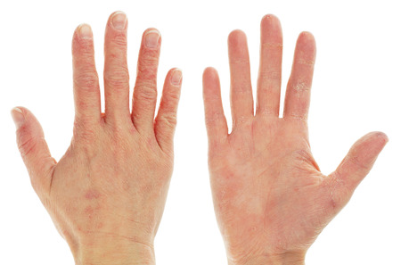 Eczema Dermatitis onFront and Back of Hand and Fingers