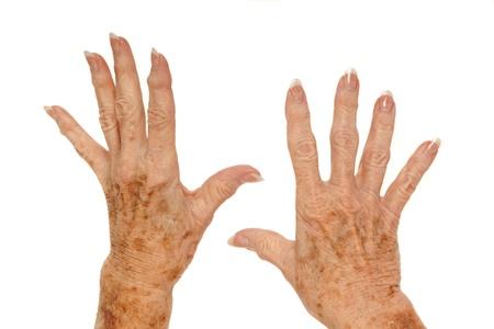 Female senior citizen hand with Rheumatoid Arthritis and age spots  also known as liver spots, Solar lentigo, Lentigo senilis and Senile freckle  shot on a white background