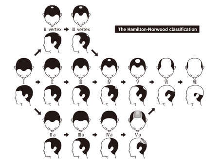 Illustration pour Information chart of hair loss stages and types of baldness illustrated on a male head. - image libre de droit