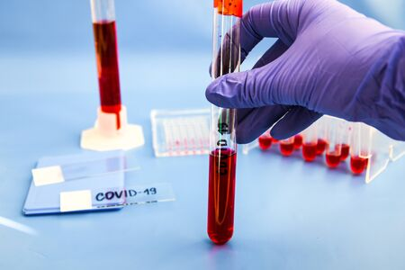 Photo pour Coronavirus Blood Sample, DNA testing of the blood in the laboratory and blood sample collection tubes and syringe with DNA modern interface blue background, covid-19 virus - image libre de droit