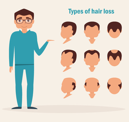 Illustration for Types of hair loss. Full face, profile, top types. Vector illustration. Cartoon character Isolated - Royalty Free Image