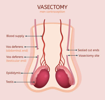 Illustration pour Man vasectomy image. Contraception concept. Male reproductive organs with useful information. Testis, scrotum and vessels. Vector illustration in light pink and red colours.  - image libre de droit