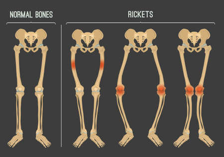 Illustration pour Normal bones versus Rickets and Osteomalacia. Types of disease. Medical, anatomy and biology concept. Educational vector illustration, isolated on a dark grey background. - image libre de droit