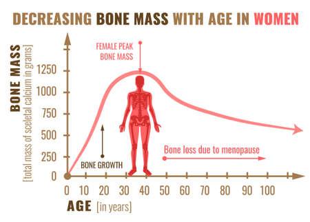 Illustration pour Decreasing bone mass with age in women illustration - image libre de droit