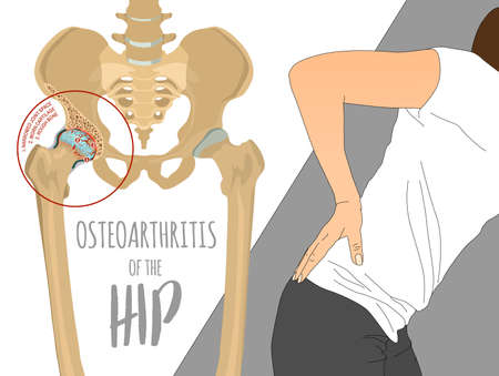 Illustration pour Hip Osteoarthritis Infographic. Realistic bones scheme. Lower back and joint pain. Editable vector illustration isolated on a light background. Medical, healthcare, elderly diseases graphic concept. - image libre de droit