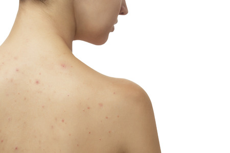 Photo pour Young girl with skin problem (acne) on her back - image libre de droit