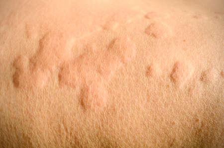 Skin rash, Urticaria, Allergic skin reaction.