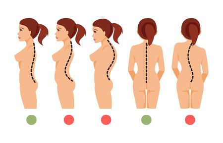 Ilustración de Types of deformation of the spine Scoliosis, lordosis, kyphosis. Correct and incorrect posture. Vector illustration - Imagen libre de derechos