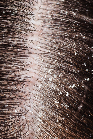 The disease of the scalp in the form of dandruff