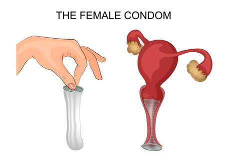 Illustration pour illustration of a female condom and method of application. the uterus, ovaries, vagina - image libre de droit