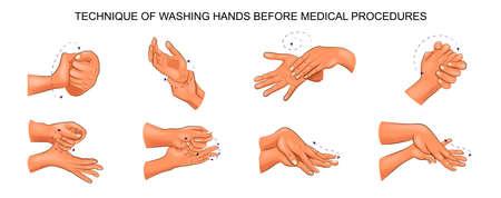 Illustration pour Illustration of washing hands. - image libre de droit