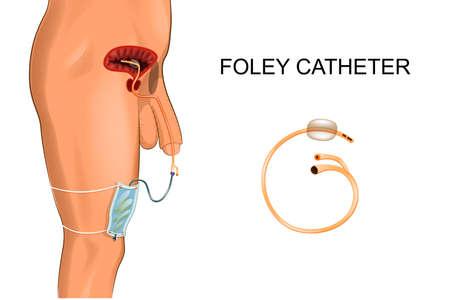 Illustration pour Illustration of a Foley catheter, a bag to collect urine. - image libre de droit