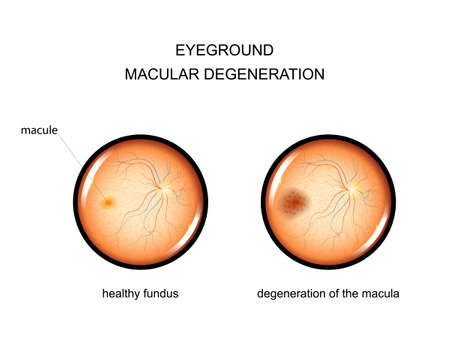 Illustration pour vector illustration of the fundus. degeneration of the macula - image libre de droit