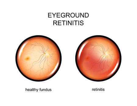Illustration pour vector illustration of the eye fundus. retinitis - image libre de droit