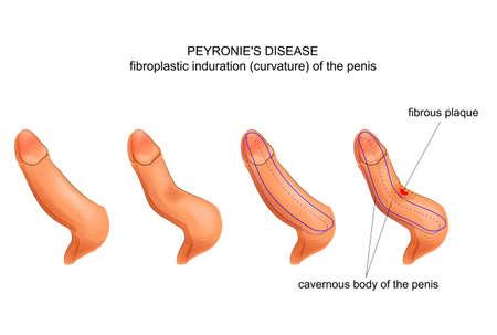 Illustrazione per chordee. Peyronies disease. - Immagini Royalty Free