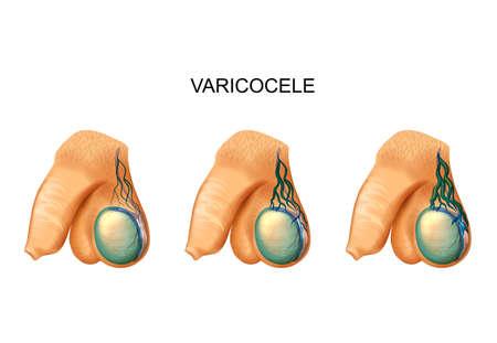 Ilustración de varicocele on testicle - Imagen libre de derechos