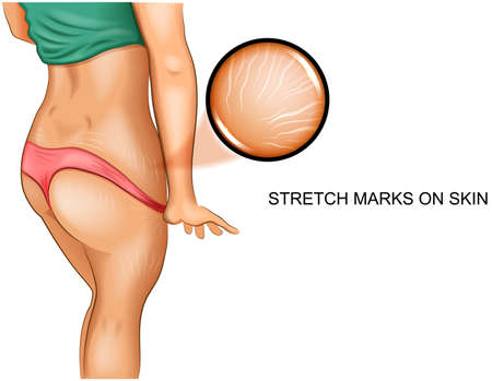 vector illustration of stretch marks on the skin. before and after
