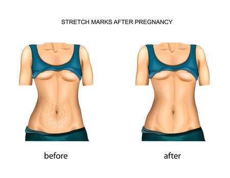 stretch marks after pregnancy. before and after.