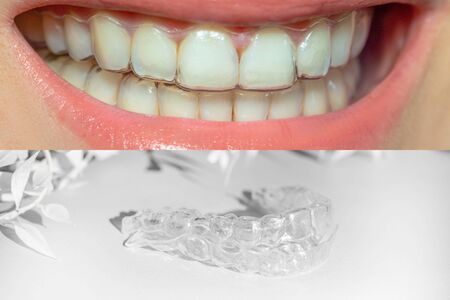 Photo pour collage teeth with orthodontic braces, beautiful smile with transparent braces and individual aligners with white leaves, concept of mobile orthodontic appliance for dental correction. - image libre de droit