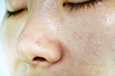 Foto de Skin problem with acne diseases, Close up woman face with whitehead pimples on nose, Scar and oily greasy face, Beauty concept. - Imagen libre de derechos