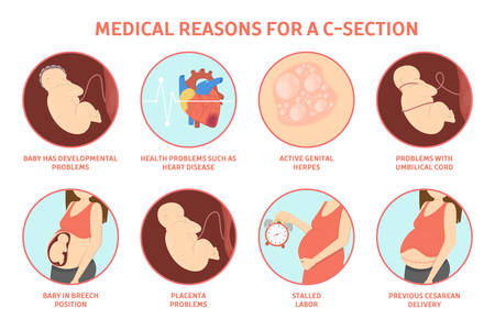 Illustration pour Medical reasons for cesarean delivery or c-section. Medical surgery and abdominal incision. Stalled labor and herpes, problem with placenta. Isolated vector illustration - image libre de droit
