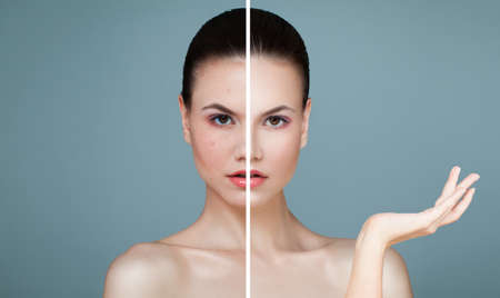 Photo pour Young Female Face with Skin Problem and Clear Skin. Woman Showing Empty Copy Space on the Open Hand. Unhealthy and Healthy Skin After Treatment. - image libre de droit