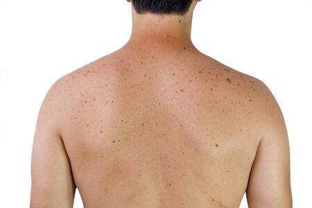 Photo pour A male shoulder with sunspots - image libre de droit