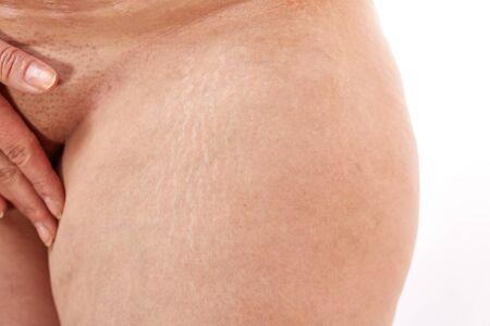 Foto de legs of a 40 year old woman with postpartum stretch marks close up. - Imagen libre de derechos