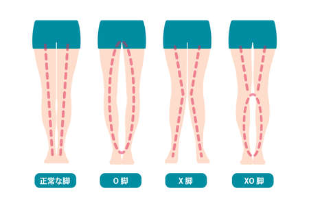 Illustration pour Difference Types of Legs Angles and Vector Knees Illustration (Japanese) - image libre de droit