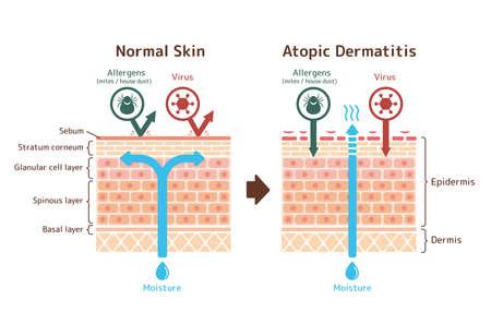 Illustration pour Sectional View of Basic dermatitis and normal skin / Common vector illustration - image libre de droit