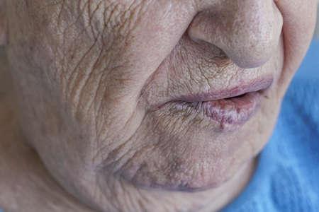 Photo pour Closeup mouth of a senior person who has facial palsy - image libre de droit
