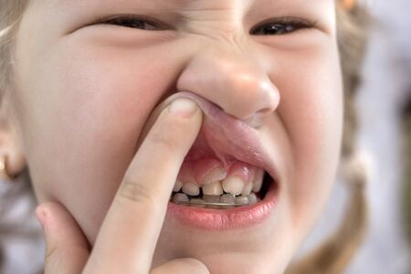 Photo pour Adult permanent teeth coming in front of the child's baby teeth: shark teeth. Little girl's open mouth. - image libre de droit