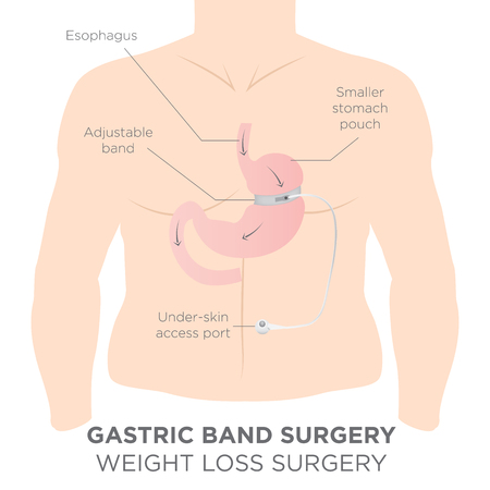 Illustration for Gastric Band for Weight Loss.  If you Tighten or Loosen it, It Lets More Food Slide Down in the Lower Stomach.  The Doctor Assistant Adjusts the Tightness of the Band with a Port that's Under the Skin. - Royalty Free Image