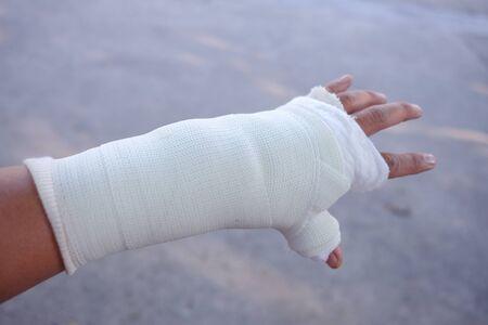 Photo pour The injured man's hand and a splint. - image libre de droit