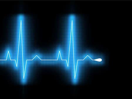Heartbeat glow on a black monitor.