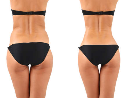 Photo for Plastic surgery. Liposuction. Slim body concept - Royalty Free Image