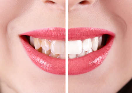 Smiling woman, teeth: before and after concept