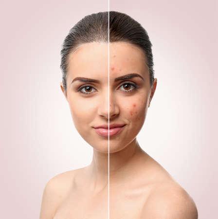Photo pour Woman face before and after acne treatment procedure. Skin care concept. - image libre de droit