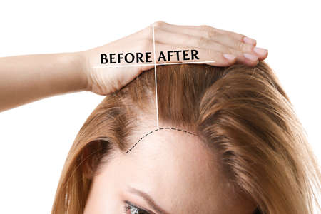 Photo for Woman before and after hair loss treatment on white background - Royalty Free Image