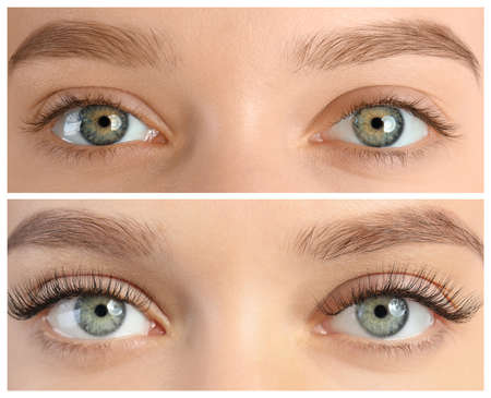 Photo for Young woman before and after eyelash extension procedure, closeup - Royalty Free Image